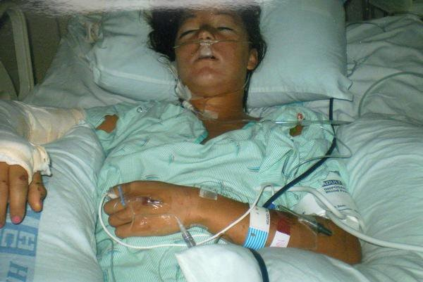 Megan in the hospital following her motorcycle accident
